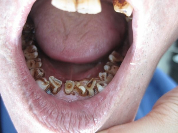 The adult dentition in the small towns outside of Nha Trang ranged from severe to very severe conditions. This is a severe case of bruxism (grinding) alongside with betel nut staining.