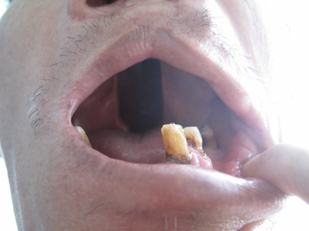 This man was over 70 years ago and has lived with a cleft palate and adapted his entire life.