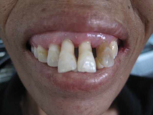 One of the examples of Chronic Periodontitis (gum disease) that is rampant in areas of underserved populations.